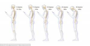 neck strain and pain
